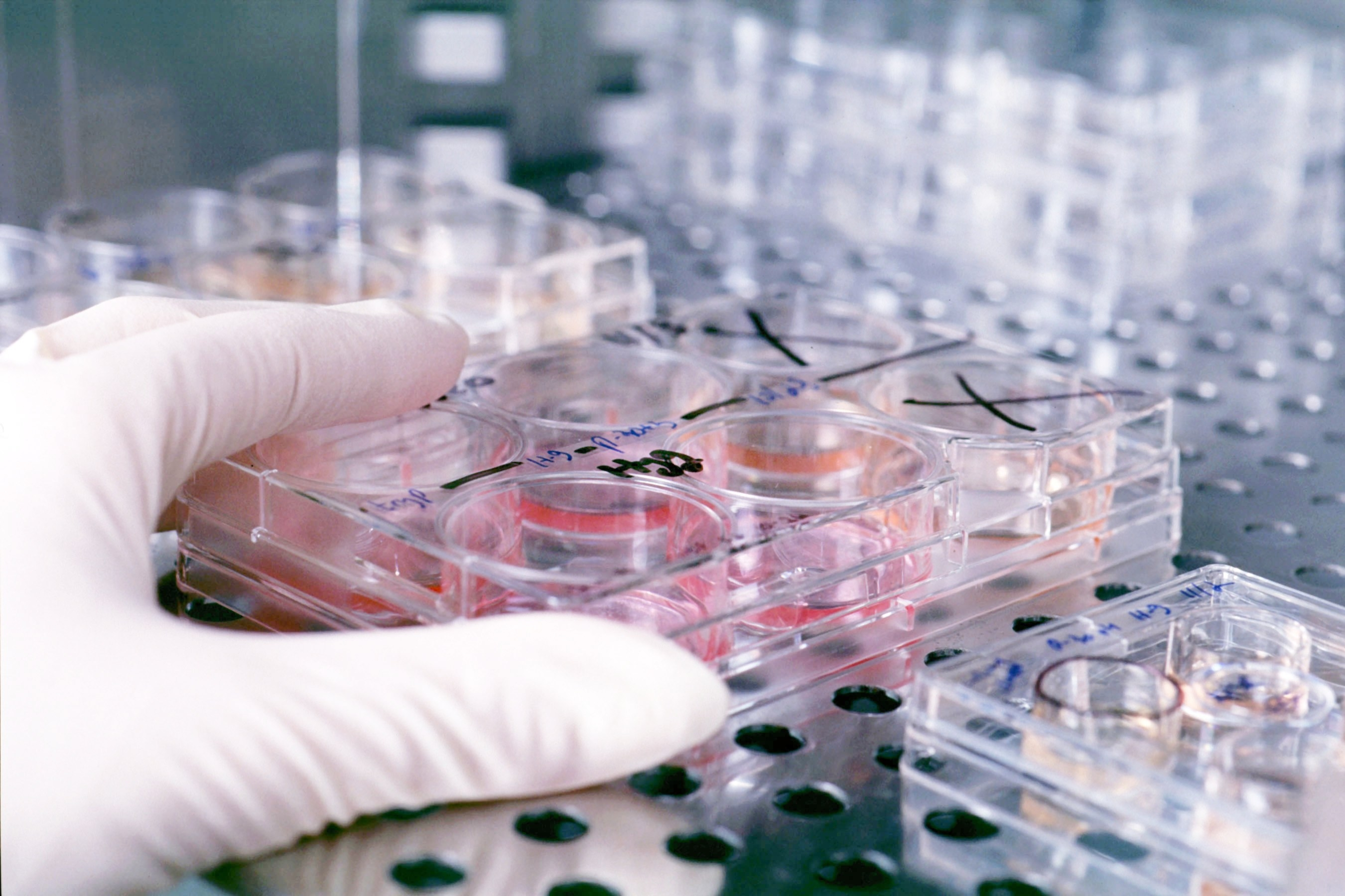 Improving Cell Viability During Transfection