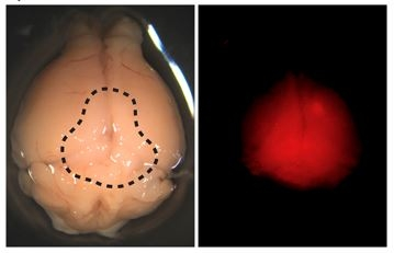 Gross appearance and fluorescence signal of xenografted mouse brain. The dotted area shows a slightly pinkish appearance from tdTomato expression. Right panel indicates the fluorescence signal with a red fluorescent protein (RFP) filter. Adapted from Fig 3E of Ogawa et al. 2018.