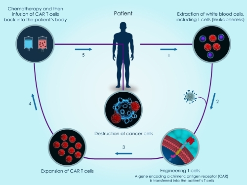 Creating CAR-T cells with Electroporation
